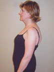 May 2006 Scoliosis Progression
