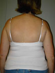 April 2006 Scoliosis Progression